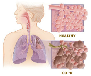 Enroll in a Clinical Trial for COPD