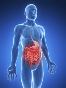 3D image showing affects of colon cancer