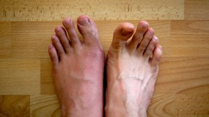 Enroll in a Clinical Trial for Gout
