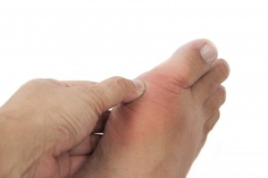 Gout symptoms not entirely relieved by Krystexxa medication during clinical study