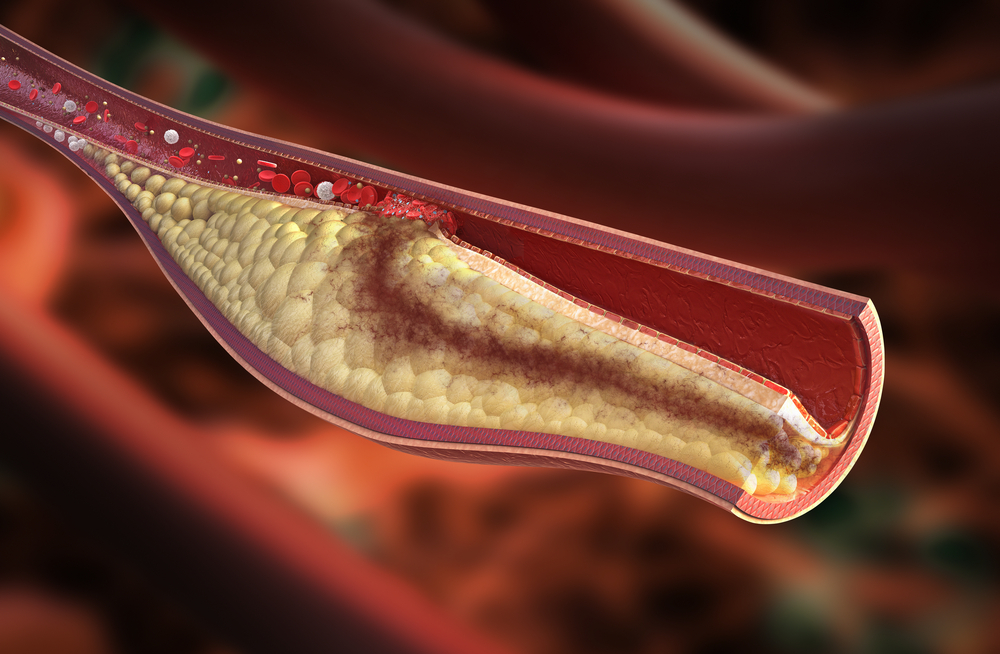 Artery that is blocked due to high cholesterol