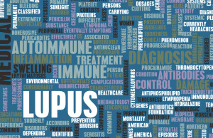 Information about lupus clinical trials