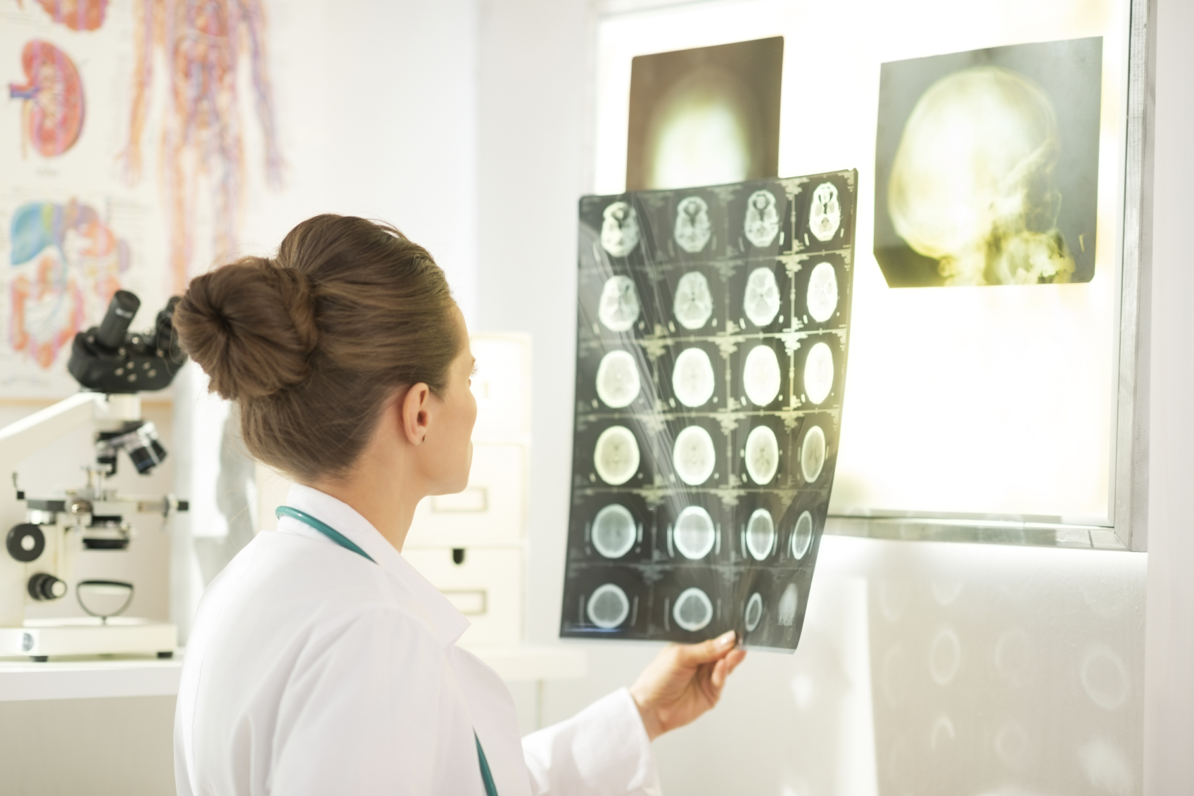 Oncologist examining scans from a cancer patient
