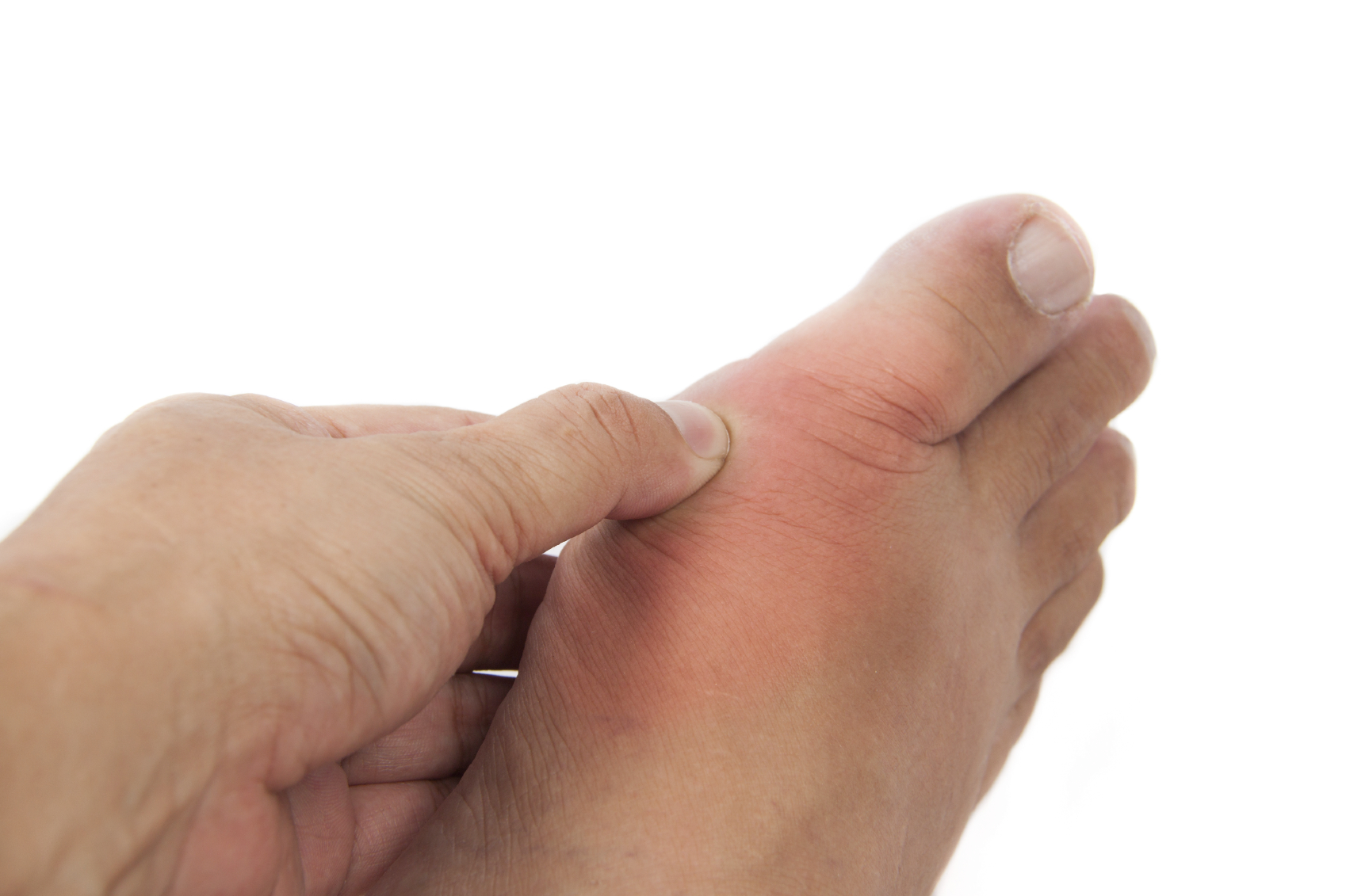 Inspecting symptoms of gout in the big toe