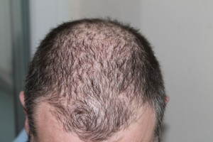 Man experiencing some advanced hair loss